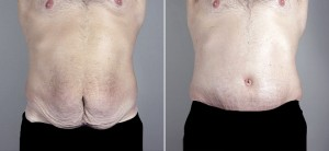 male_abdominoplasty_03a