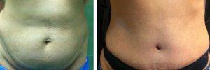 قبل و بعد از ابدومینوپلاستی4