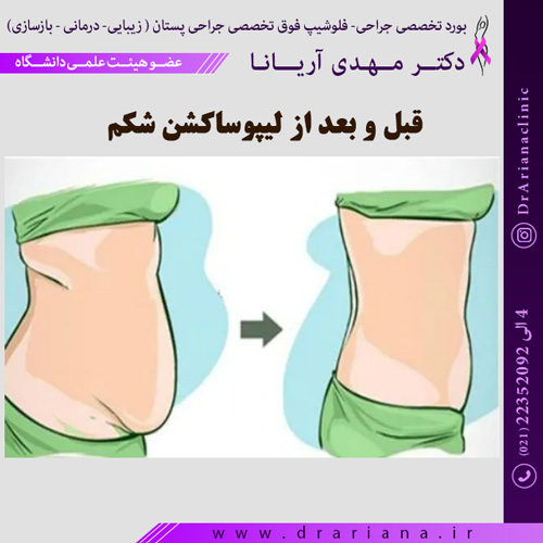 قبل-و-بعد-از-لیپوساکشن-شکم